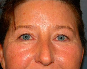 Blepharoplasty Gallery - Patient 4595024 - Image 1