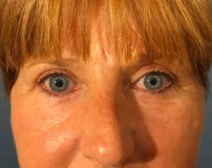 Blepharoplasty Gallery - Patient 4595024 - Image 2