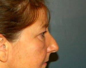 Blepharoplasty Gallery - Patient 4595024 - Image 3