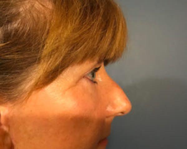 Blepharoplasty Gallery - Patient 4595024 - Image 4