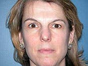 Blepharoplasty Gallery - Patient 4595030 - Image 1