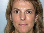 Blepharoplasty Gallery - Patient 4595030 - Image 2