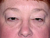 Blepharoplasty Gallery - Patient 4595045 - Image 6