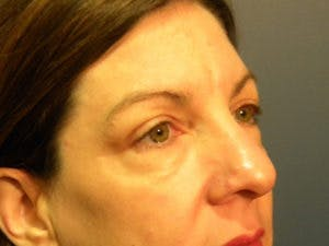 Blepharoplasty Gallery - Patient 4595054 - Image 1