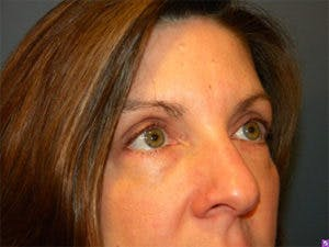 Blepharoplasty Gallery - Patient 4595054 - Image 2