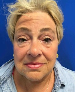 Blepharoplasty Gallery - Patient 4595094 - Image 9