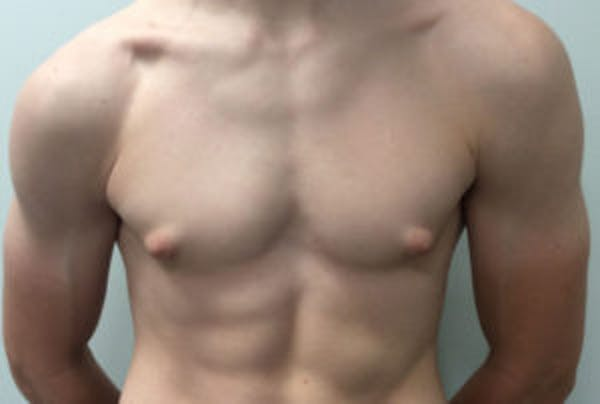Gynecomastia Gallery - Patient 4595111 - Image 1