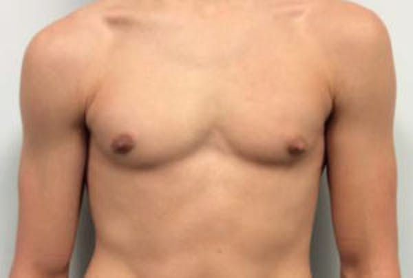Gynecomastia Gallery - Patient 4595111 - Image 2