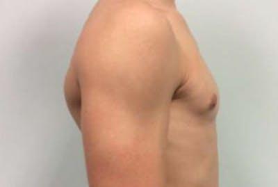 Gynecomastia Gallery - Patient 4595111 - Image 4