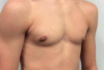 Gynecomastia Gallery - Patient 4595111 - Image 6
