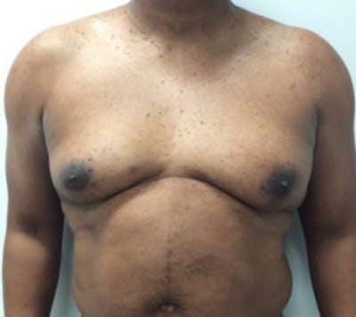 Gynecomastia Gallery - Patient 4595112 - Image 1
