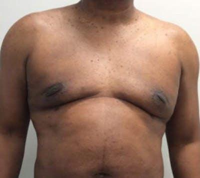 Gynecomastia Gallery - Patient 4595112 - Image 2
