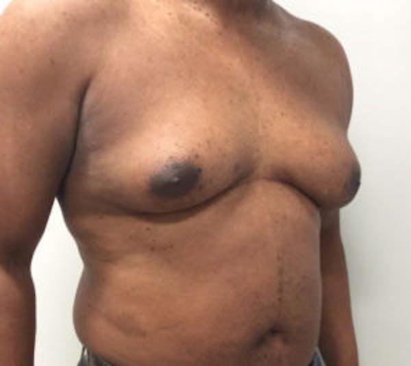 Gynecomastia Gallery - Patient 4595112 - Image 3