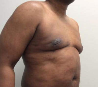 Gynecomastia Gallery - Patient 4595112 - Image 4