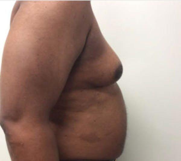 Gynecomastia Gallery - Patient 4595112 - Image 5