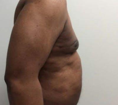 Gynecomastia Gallery - Patient 4595112 - Image 6