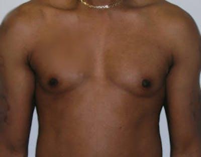 Gynecomastia Gallery - Patient 4595113 - Image 1