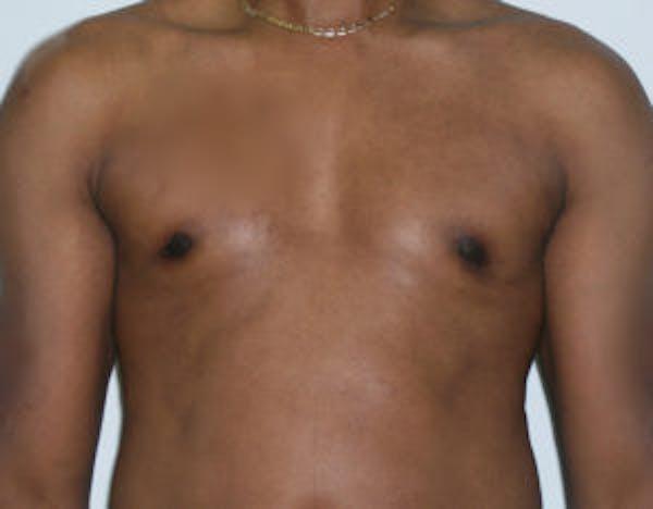 Gynecomastia Gallery - Patient 4595113 - Image 2
