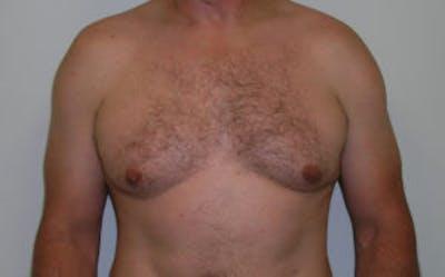 Gynecomastia Gallery - Patient 4595115 - Image 1
