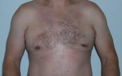Gynecomastia Gallery - Patient 4595115 - Image 2