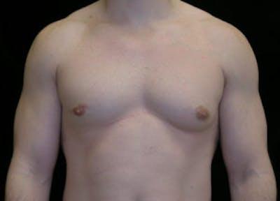 Gynecomastia Gallery - Patient 4595116 - Image 1