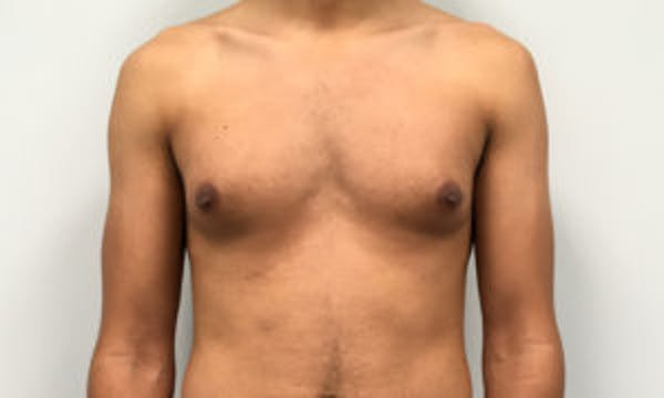 Gynecomastia Gallery - Patient 4595117 - Image 1