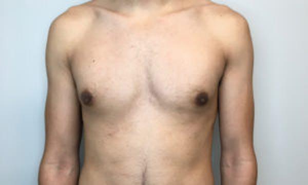 Gynecomastia Gallery - Patient 4595117 - Image 2