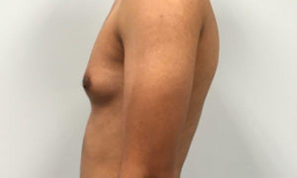 Gynecomastia Gallery - Patient 4595117 - Image 3