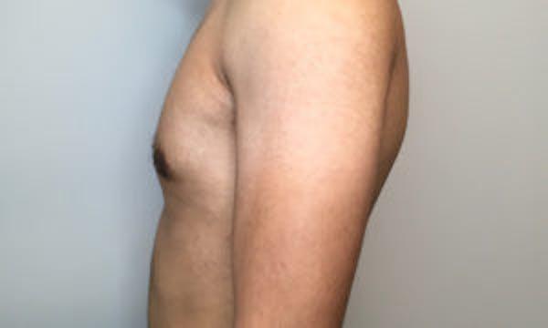 Gynecomastia Gallery - Patient 4595117 - Image 4
