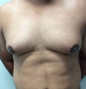 Gynecomastia Gallery - Patient 4595118 - Image 1