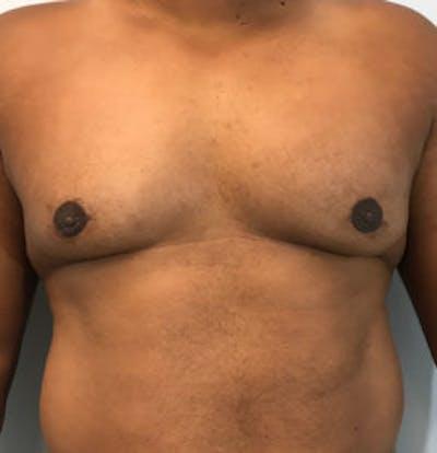 Gynecomastia Gallery - Patient 4595118 - Image 2