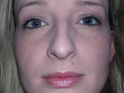 Rhinoplasty Gallery - Patient 4595119 - Image 1