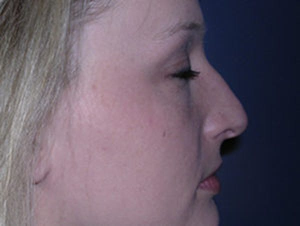 Rhinoplasty Gallery - Patient 4595119 - Image 3