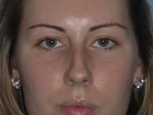 Rhinoplasty Gallery - Patient 4595120 - Image 1