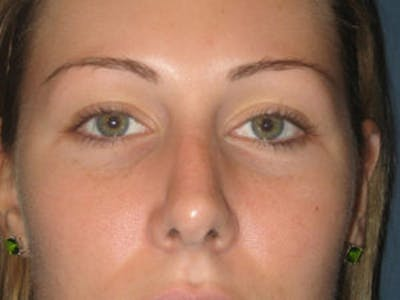 Rhinoplasty Gallery - Patient 4595120 - Image 2