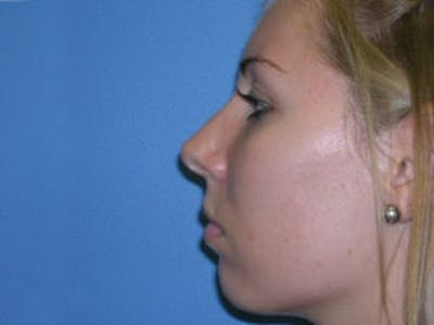 Rhinoplasty Gallery - Patient 4595120 - Image 4