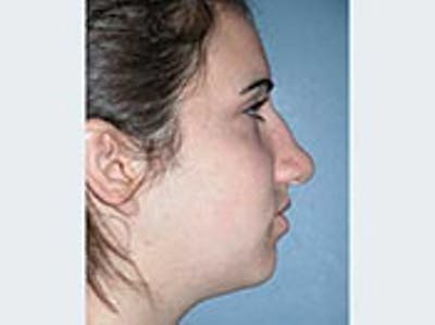 Rhinoplasty Gallery - Patient 4595124 - Image 1