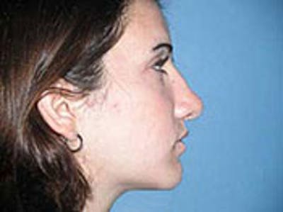 Rhinoplasty Gallery - Patient 4595124 - Image 2