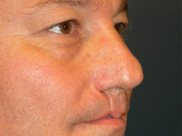 Rhinoplasty Gallery - Patient 4595126 - Image 3