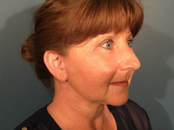 Neck Lift Gallery - Patient 4595140 - Image 2