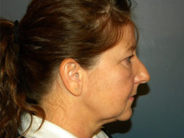 Neck Lift Gallery - Patient 4595140 - Image 3
