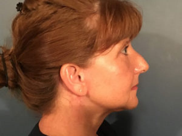 Neck Lift Gallery - Patient 4595140 - Image 4