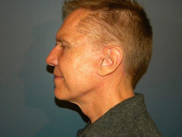Neck Lift Gallery - Patient 4595144 - Image 4