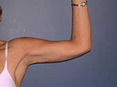 Arm Lift Gallery - Patient 4595154 - Image 2