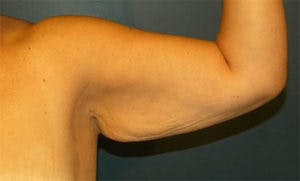 Arm Lift Gallery - Patient 4595156 - Image 1