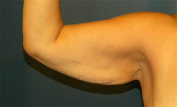Arm Lift Gallery - Patient 4595156 - Image 3