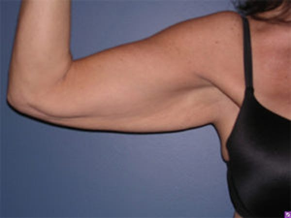 Arm Lift Gallery - Patient 4595157 - Image 1