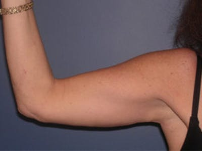 Arm Lift Gallery - Patient 4595157 - Image 2