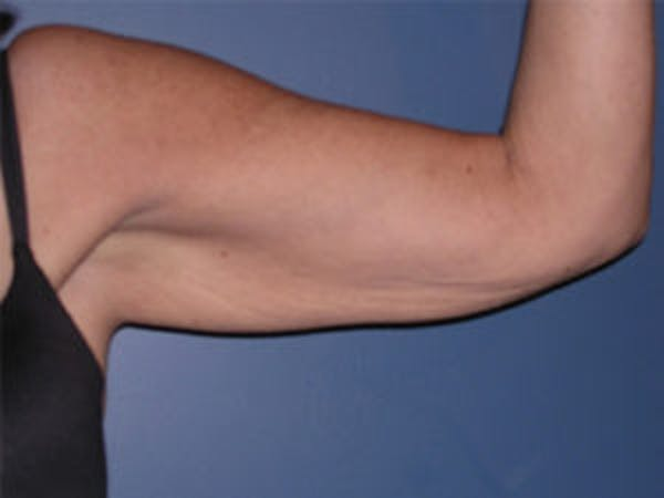 Arm Lift Gallery - Patient 4595157 - Image 3
