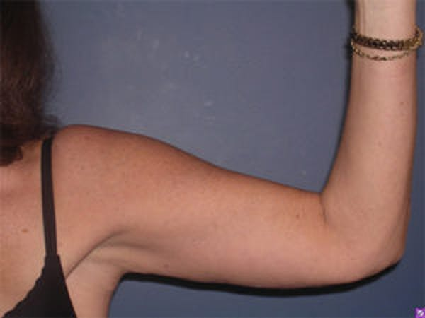 Arm Lift Gallery - Patient 4595157 - Image 4